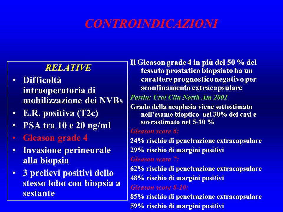 RELATIVE Difficoltà intraoperatoria di mobilizzazione dei NVBs E.R. positiva (T2c) PSA tra 10 e 20 ng/ml Gleason grade 4 Invasione perineurale alla bi