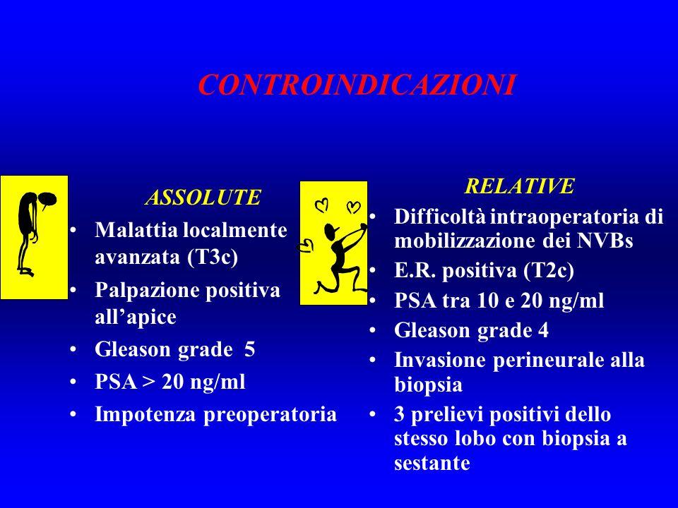 ASSOLUTE Malattia localmente avanzata (T3c) Palpazione positiva allapice Gleason grade 5 PSA > 20 ng/ml Impotenza preoperatoria RELATIVE Difficoltà in