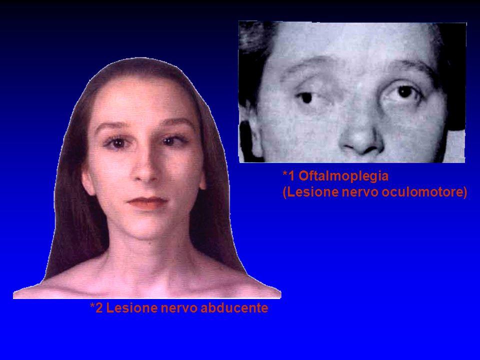 *1 Oftalmoplegia (Lesione nervo oculomotore) *2 Lesione nervo abducente