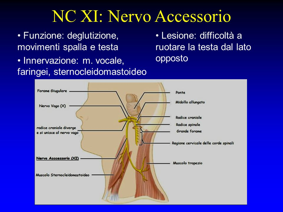 NC XI: Nervo Accessorio Funzione: deglutizione, movimenti spalla e testa Innervazione: m. vocale, faringei, sternocleidomastoideo Lesione: difficoltà