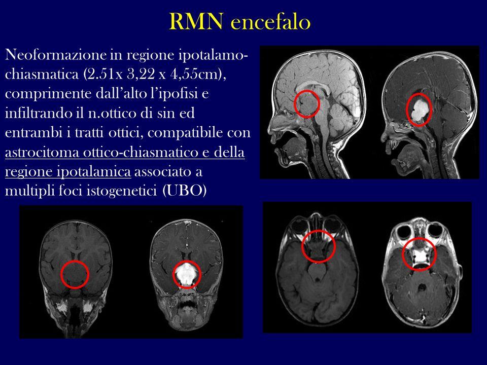 RMN encefalo Neoformazione in regione ipotalamo- chiasmatica (2.51x 3,22 x 4,55cm), comprimente dallalto lipofisi e infiltrando il n.ottico di sin ed