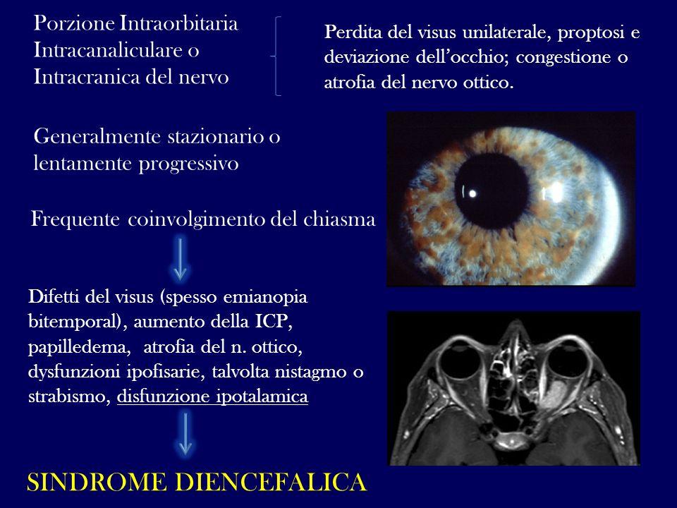 Porzione Intraorbitaria Intracanaliculare o Intracranica del nervo Generalmente stazionario o lentamente progressivo Difetti del visus (spesso emianop