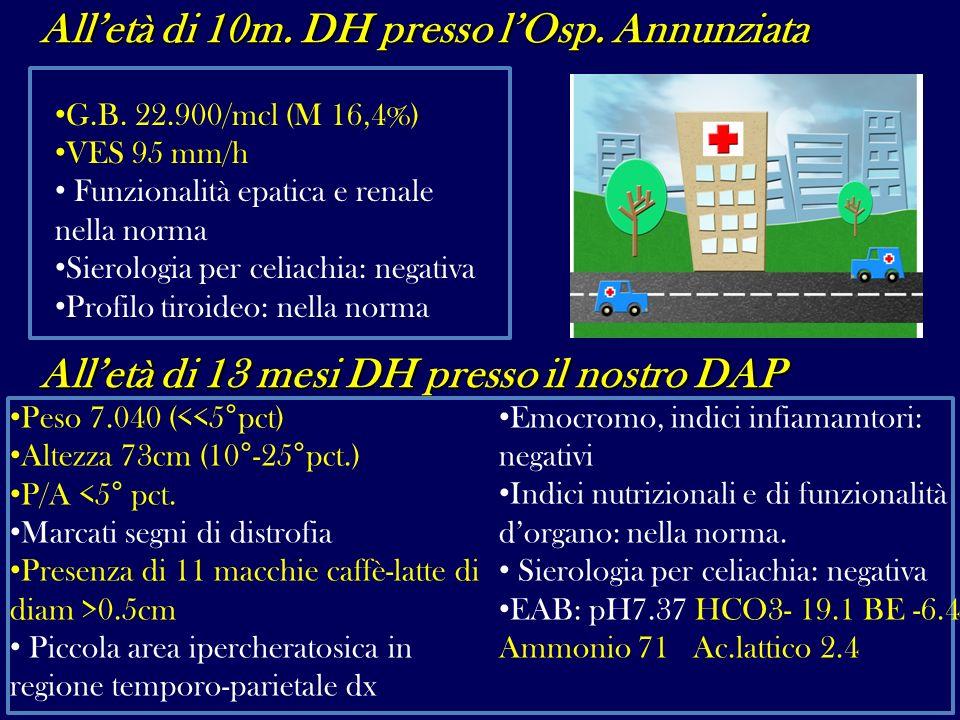 Alletà di 10m. DH presso lOsp. Annunziata G.B. 22.900/mcl (M 16,4%) VES 95 mm/h Funzionalità epatica e renale nella norma Sierologia per celiachia: ne