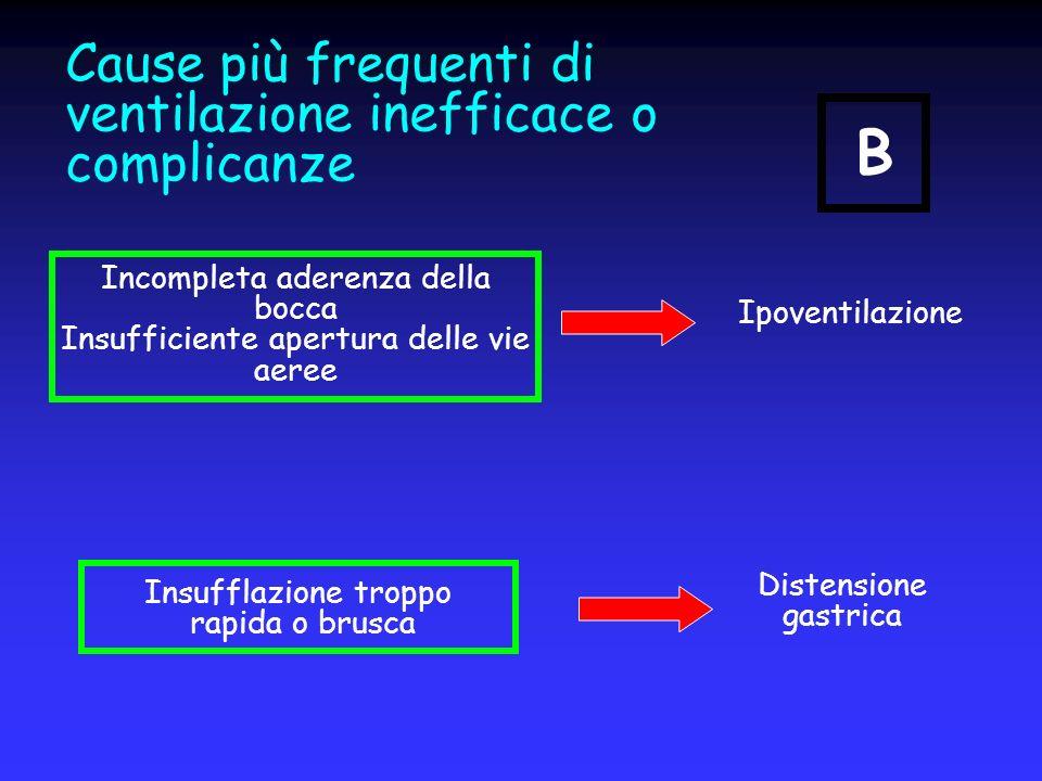 Cause più frequenti di ventilazione inefficace o complicanze Insufflazione troppo rapida o brusca Ipoventilazione Distensione gastrica Incompleta ader
