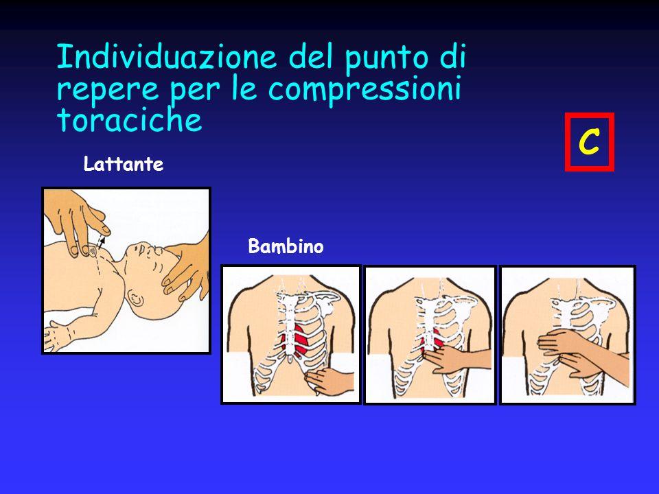 Individuazione del punto di repere per le compressioni toraciche Lattante Bambino C