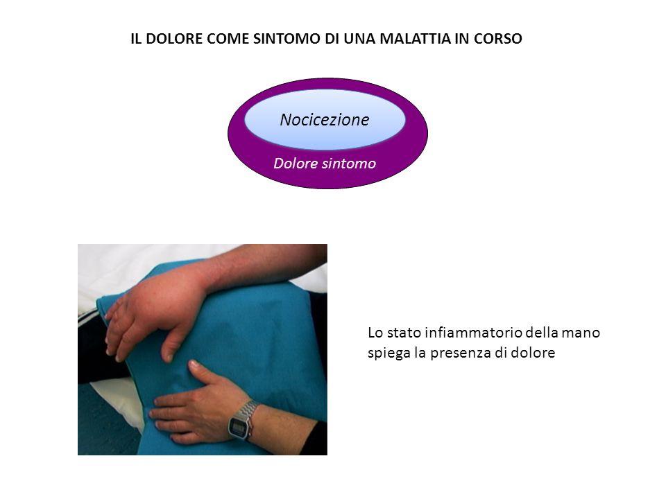 Nocicezione Dolore sintomo IL DOLORE COME SINTOMO DI UNA MALATTIA IN CORSO Lo stato infiammatorio della mano spiega la presenza di dolore