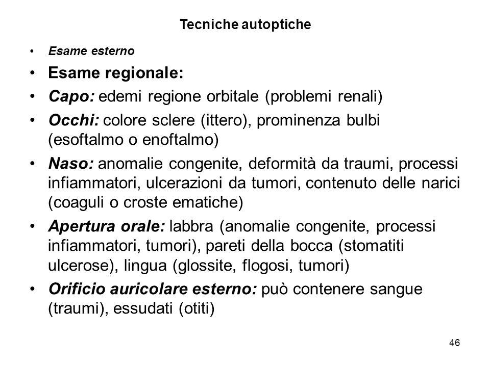 46 Tecniche autoptiche Esame esterno Esame regionale: Capo: edemi regione orbitale (problemi renali) Occhi: colore sclere (ittero), prominenza bulbi (
