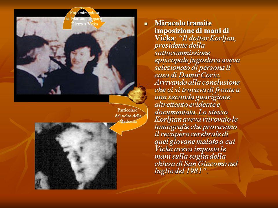 Miracolo tramite imposizione di mani di Vicka: Il dottor Korljan, presidente della sottocommissione episcopale jugoslava aveva selezionato di persona
