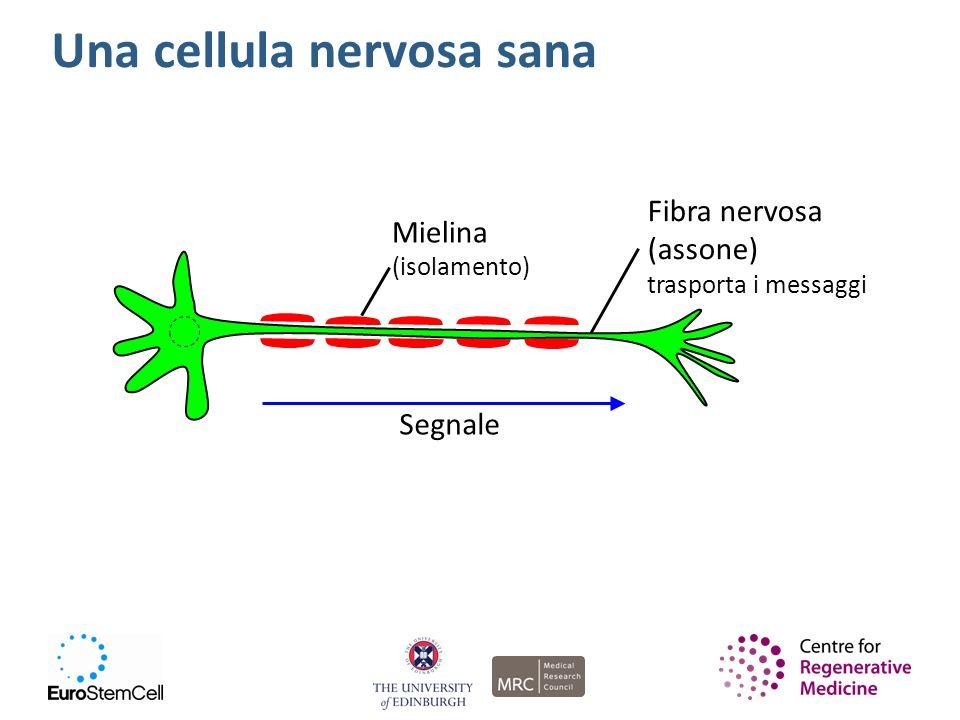 Una cellula nervosa sana Mielina (isolamento) Fibra nervosa (assone) trasporta i messaggi Segnale
