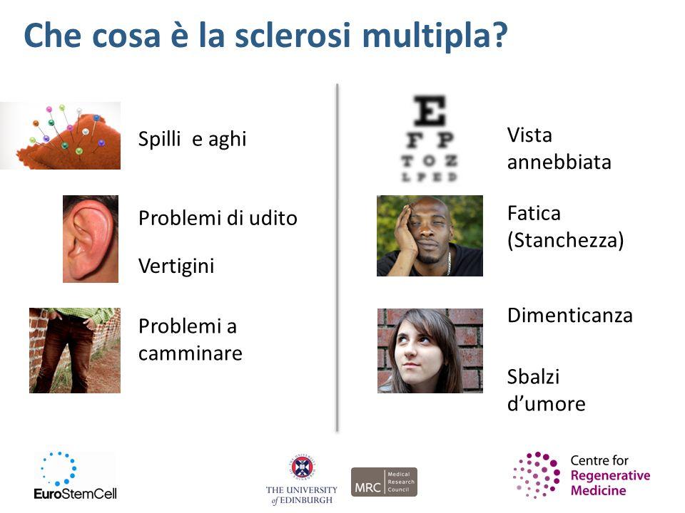 Che cosa è la sclerosi multipla? Spilli e aghi Fatica (Stanchezza) Sbalzi dumore Dimenticanza Problemi di udito Vertigini Problemi a camminare Vista a