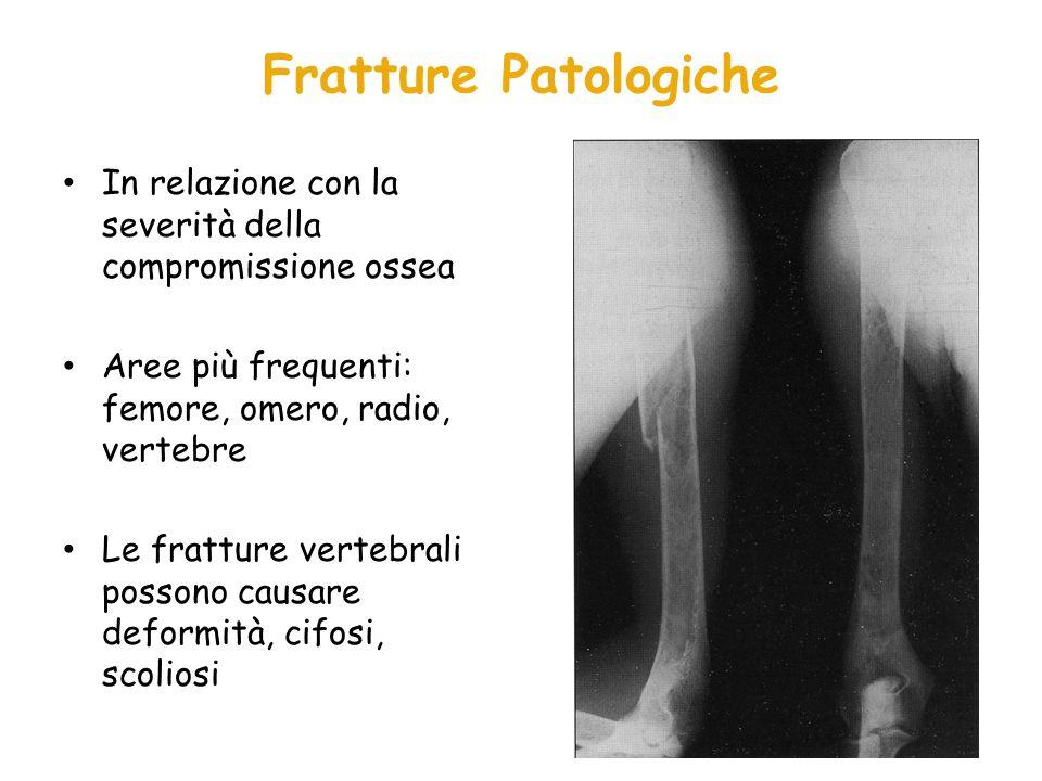 Fratture Patologiche In relazione con la severità della compromissione ossea Aree più frequenti: femore, omero, radio, vertebre Le fratture vertebrali