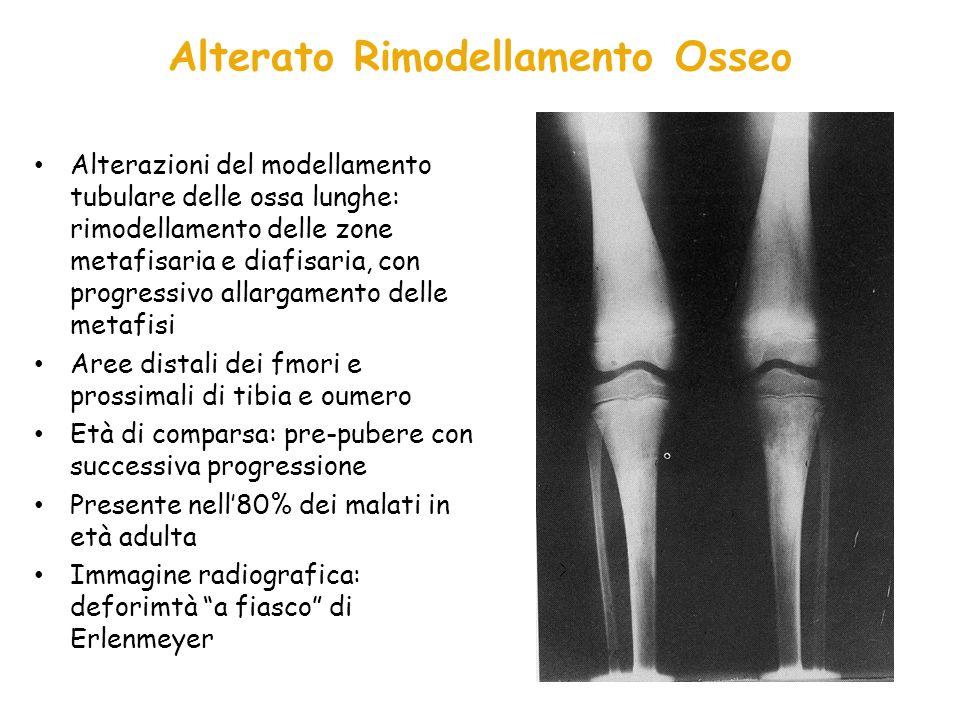 Caratteristiche* (n=18) P0** P1** Imaging scheletrico Deformità di Erlenmeyer 8 (2)3 (0) 5 (2) Lesioni litiche 3 (3)1 (1) 2 (2) Osteosclerosis 2 (2)0 Osteonecrosi 2 (2)0 Alterato BMD Z score (<-2) 3 (2)1 (0) 2 (2) P0**: pre-pubertà, P1**: pubertà