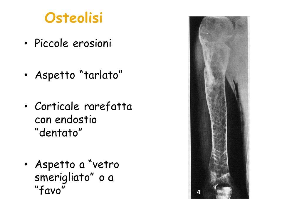Osteonecrosi (Necrosi Avasculare) E la lesione scheletrica più invalidante Secondaria ad ninfarto osseo Aree più colpite: testa femorale, omero prossimale, corpi vertebrali Irreversibile Porta a collassi articulari, fratture patologiche