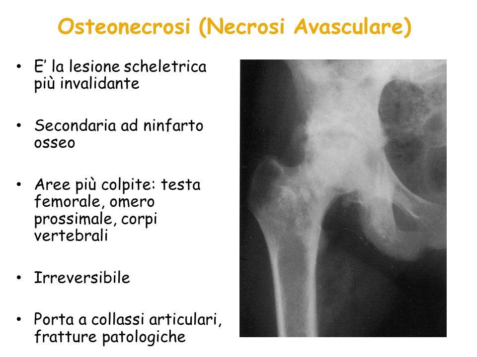 Osteosclerosi Conseguente allinfarto osseo, spesso accompagnata da dolore severo Esito di: – Calcificazione post- necrotica del midollo osseo – Aumentata attività periostale attorno alle aree necrotiche dopo infarti ossei estesi – Visibile a Rx