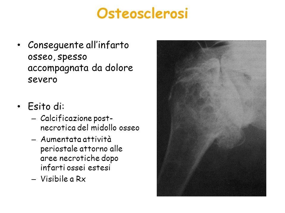 Osteosclerosi Conseguente allinfarto osseo, spesso accompagnata da dolore severo Esito di: – Calcificazione post- necrotica del midollo osseo – Aument