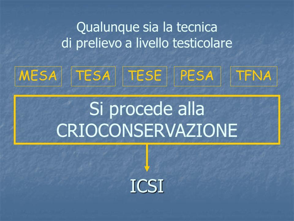 PESAMESATESATESE ICSI Si procede alla CRIOCONSERVAZIONE TFNA Qualunque sia la tecnica di prelievo a livello testicolare