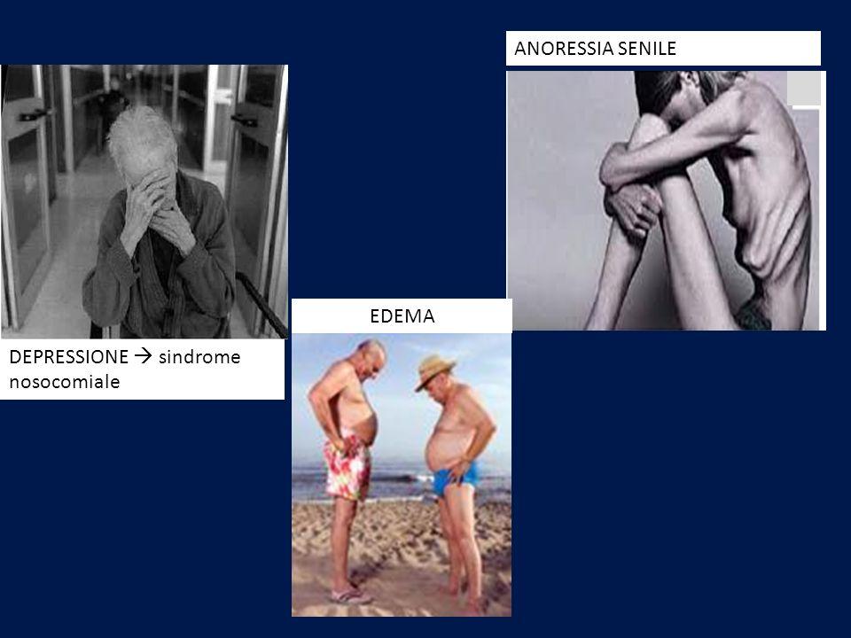 DEPRESSIONE sindrome nosocomiale EDEMA ANORESSIA SENILE