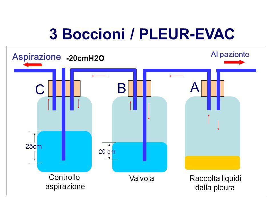 3 Boccioni / PLEUR-EVAC C B A Controllo aspirazione Valvola Raccolta liquidi dalla pleura 25cm -20cmH2O Al paziente Aspirazione 20 cm