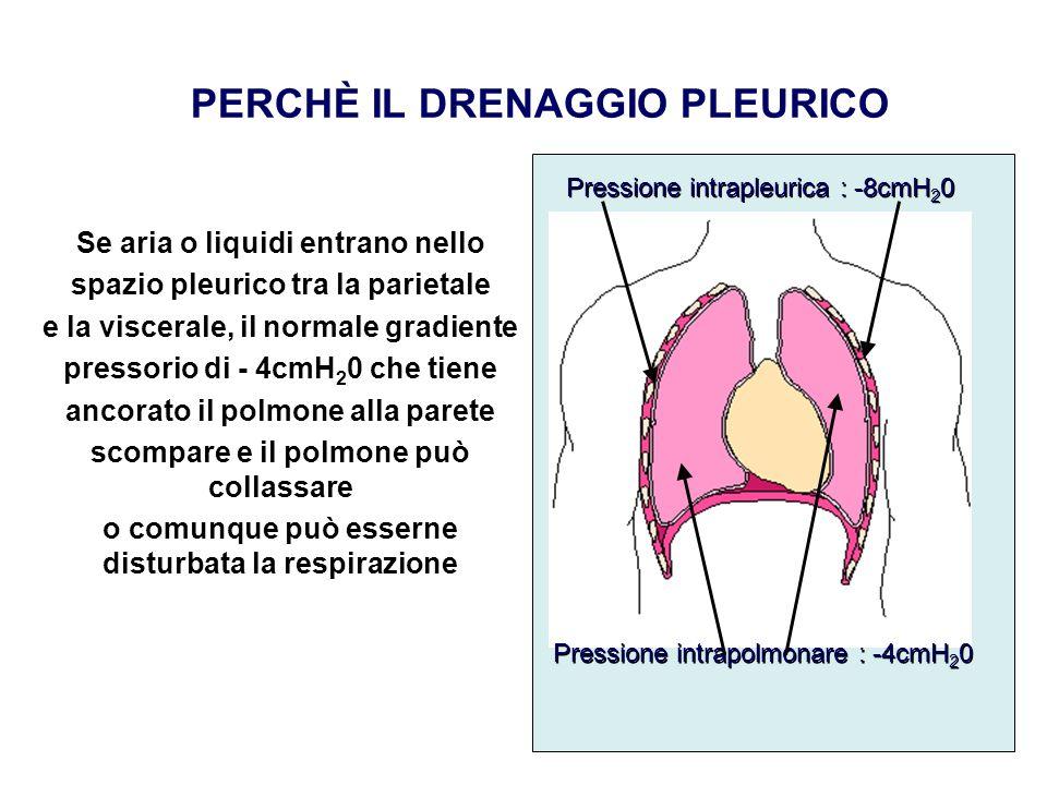 Se aria o liquidi entrano nello spazio pleurico tra la parietale e la viscerale, il normale gradiente pressorio di - 4cmH 2 0 che tiene ancorato il po