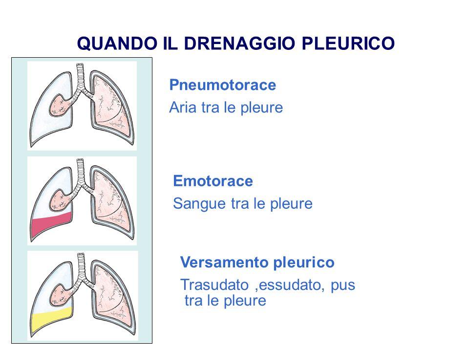 QUANDO IL DRENAGGIO PLEURICO Pneumotorace Aria tra le pleure Emotorace Sangue tra le pleure Versamento pleurico Trasudato,essudato, pus tra le pleure