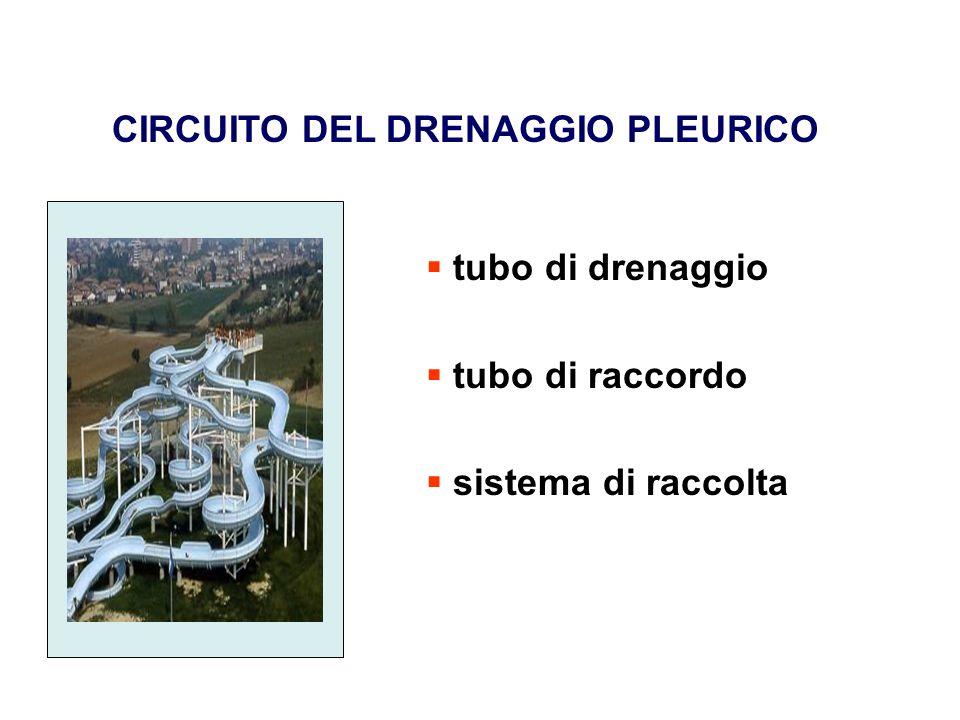 CIRCUITO DEL DRENAGGIO PLEURICO tubo di drenaggio tubo di raccordo sistema di raccolta
