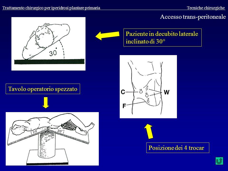 Trattamento chirurgico per iperidrosi plantare primaria Tecniche chirurgiche Paziente in decubito laterale inclinato di 30° Tavolo operatorio spezzato