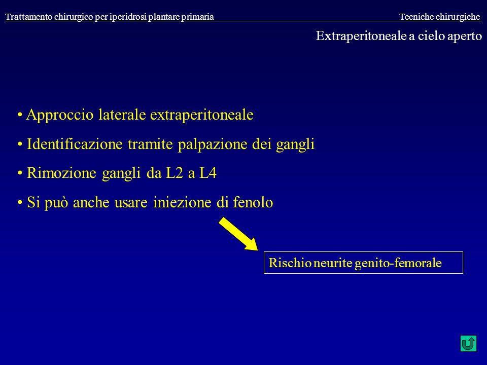 Trattamento chirurgico per iperidrosi plantare primaria Tecniche chirurgiche Extraperitoneale a cielo aperto Approccio laterale extraperitoneale Ident