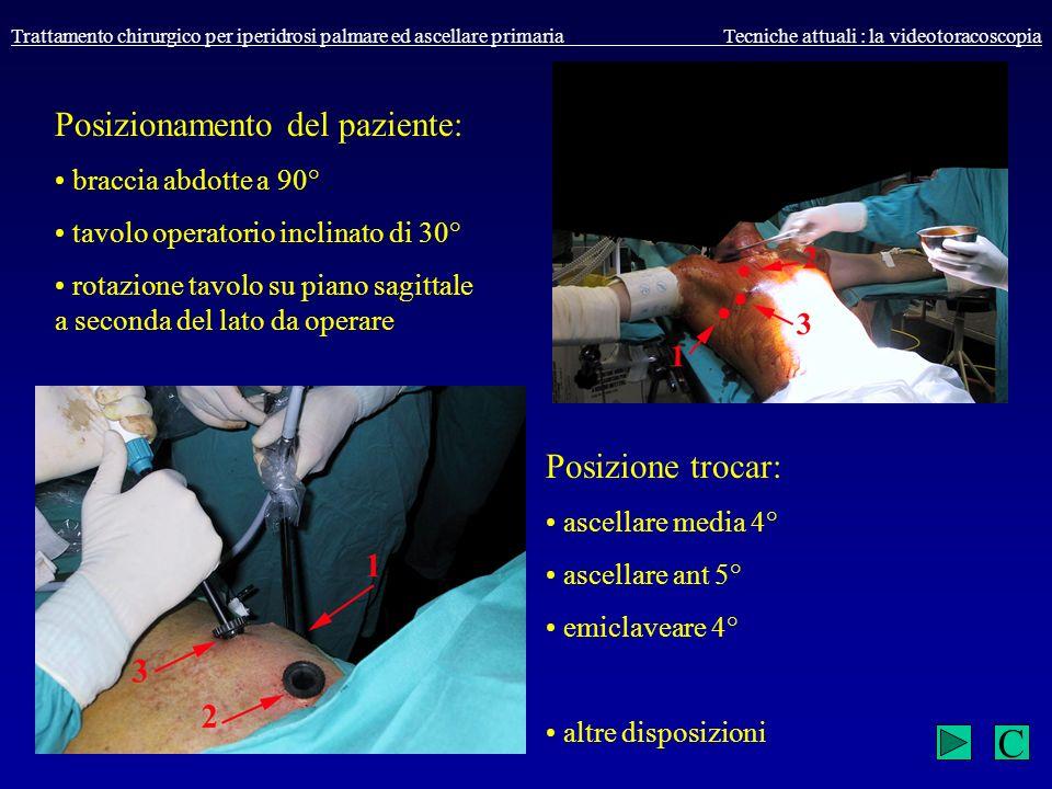 Trattamento chirurgico per iperidrosi palmare ed ascellare primaria Tecniche attuali : la videotoracoscopia Posizionamento del paziente: braccia abdot