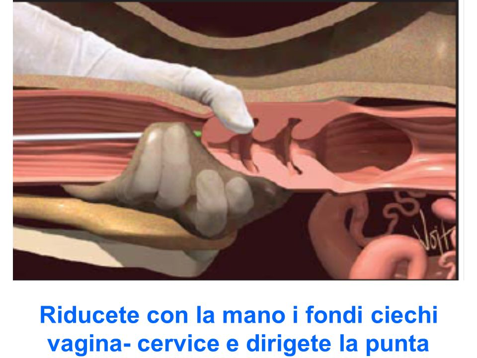 Riducete con la mano i fondi ciechi vagina- cervice e dirigete la punta