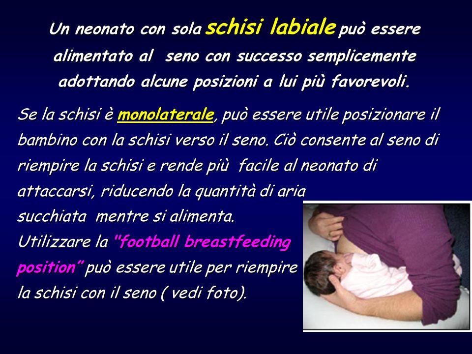 Se la schisi è monolaterale, può essere utile posizionare il bambino con la schisi verso il seno. Ciò consente al seno di riempire la schisi e rende p