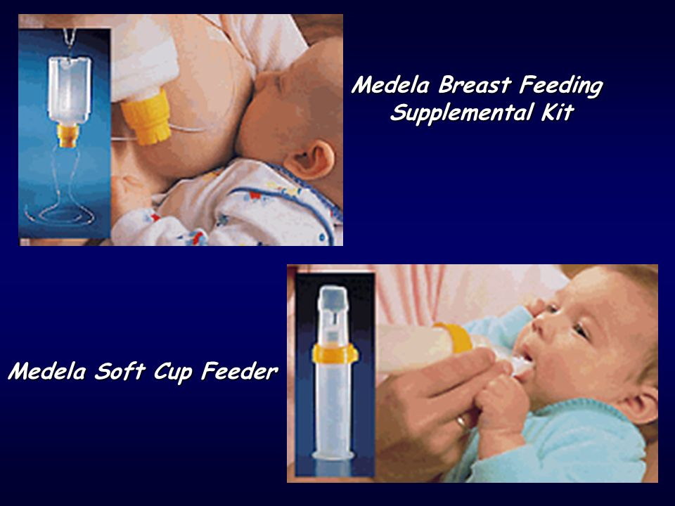 Medela Breast Feeding Supplemental Kit Medela Soft Cup Feeder