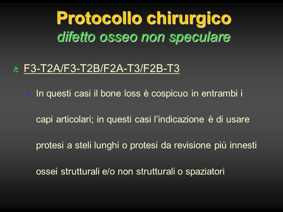 Protocollo chirurgico difetto osseo non speculare F3-T2A/F3-T2B/F2A-T3/F2B-T3 In questi casi il bone loss è cospicuo in entrambi i capi articolari; in