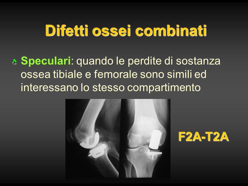 Difetti ossei combinati Speculari: quando le perdite di sostanza ossea tibiale e femorale sono simili ed interessano lo stesso compartimento F2A-T2A