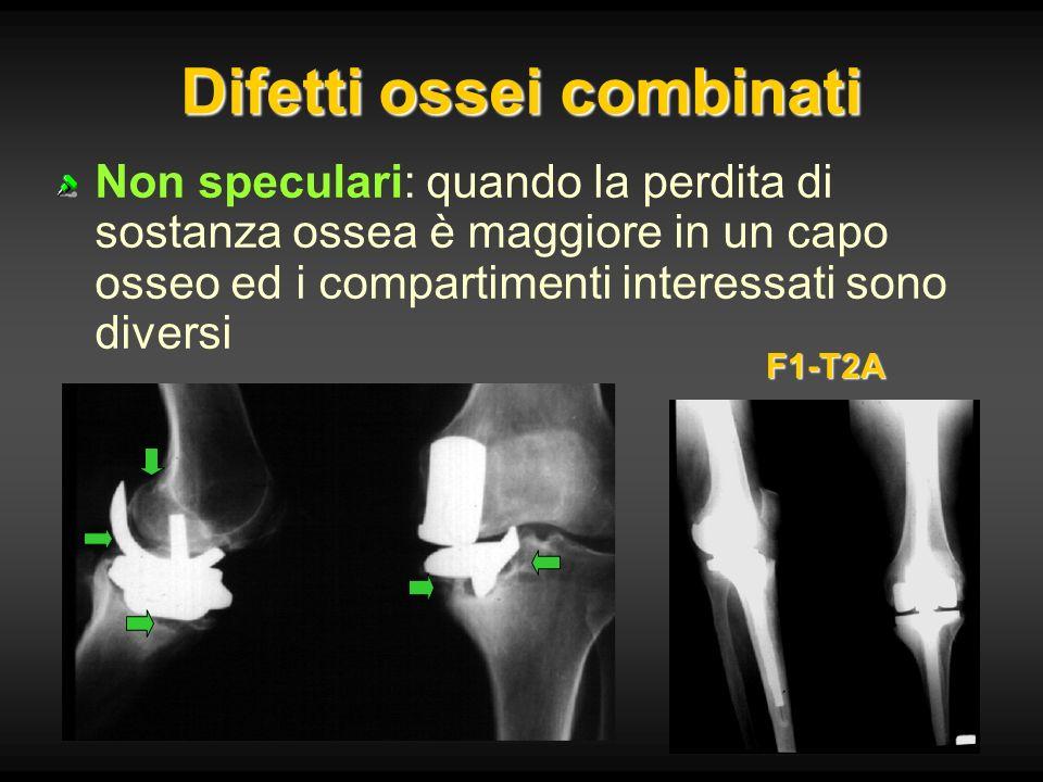 Difetti ossei combinati Non speculari: quando la perdita di sostanza ossea è maggiore in un capo osseo ed i compartimenti interessati sono diversi F1-