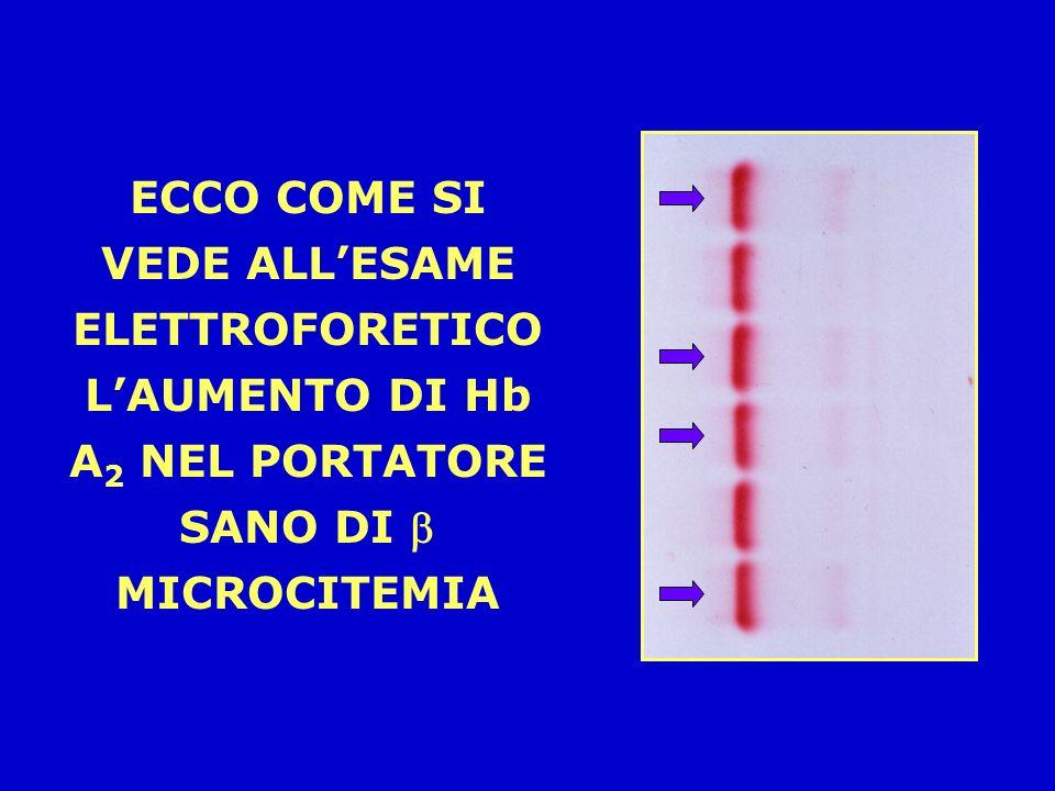 IL QUADRO EMOGLOBINICO NELLE MICROCITEMIE NELLA MICROCITEMIA LA QUOTA DI Hb A 2 È IL DOPPIO DELLA QUOTA NORMALE (5% O PIU, ANZICHÈ 2,5%). NELLA MICROC