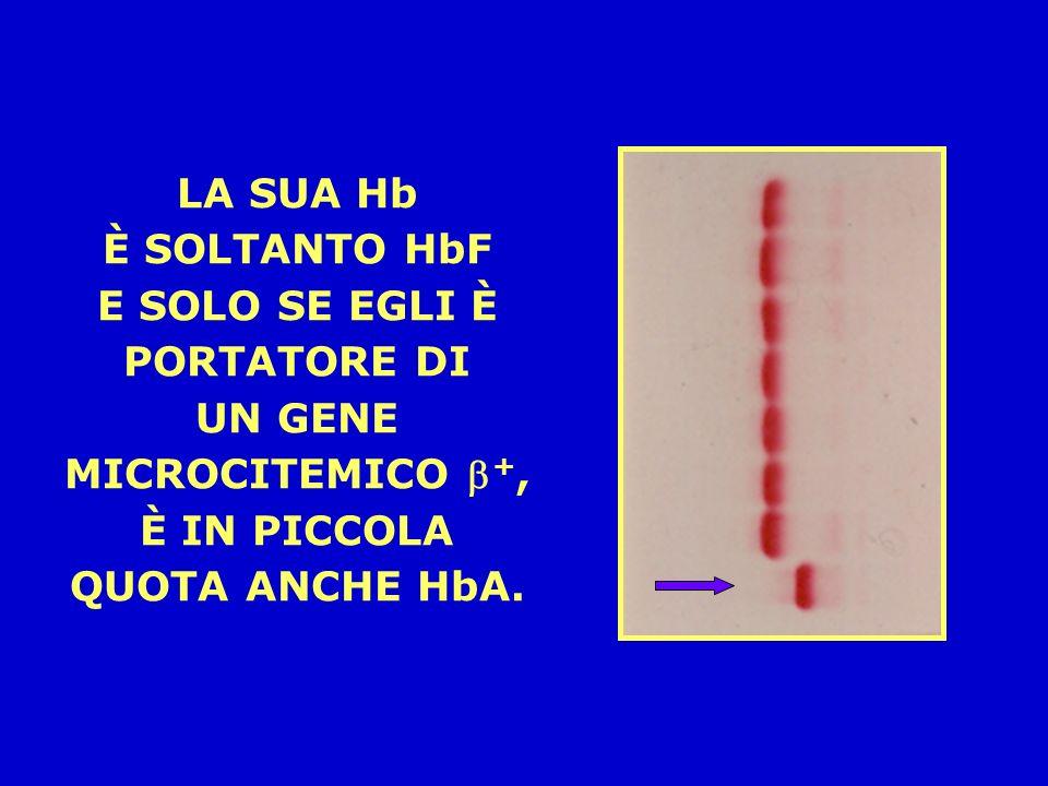 LANEMIA MEDITERRANEA LA CONDIZIONE GENETICA CHE CAUSA LA MALATTIA È LOMOZIGOSI PER UN DIFETTO MICROCITEMICO GRAVE (IN ITALIA MOLTO SPESSO LA MUTAZIONE