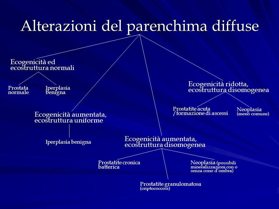 Alterazioni del parenchima diffuse Ecogenicità ed ecostruttura normali Prostata normale Iperplasia benigna Ecogenicità aumentata, ecostruttura uniform