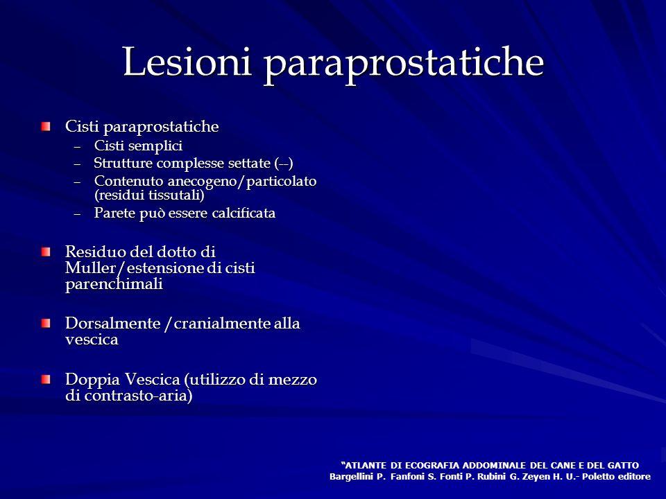 Lesioni paraprostatiche Cisti paraprostatiche –Cisti semplici –Strutture complesse settate (--) –Contenuto anecogeno/particolato (residui tissutali) –