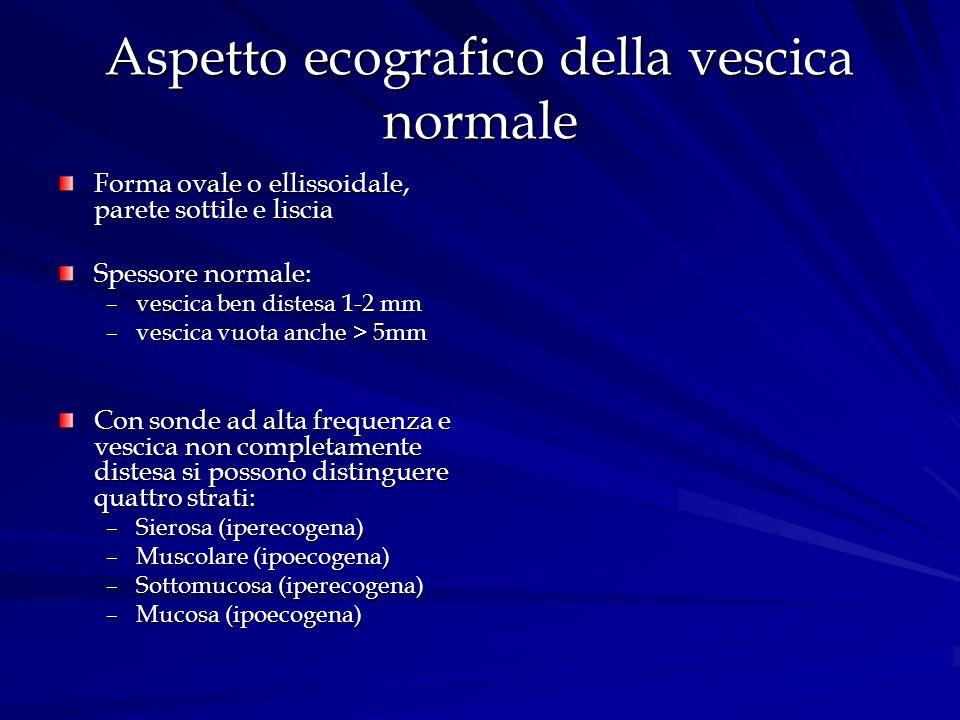 Aspetto ecografico della vescica normale Forma ovale o ellissoidale, parete sottile e liscia Spessore normale: –vescica ben distesa 1-2 mm –vescica vu