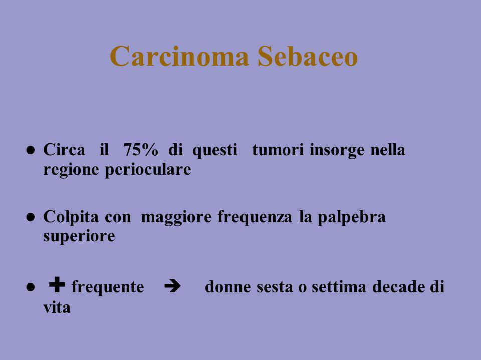 Carcinoma Sebaceo Circa il 75% di questi tumori insorge nella regione perioculare Colpita con maggiore frequenza la palpebra superiore frequente donne
