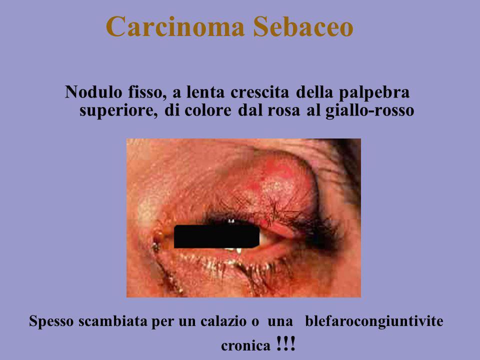 Carcinoma Sebaceo Nodulo fisso, a lenta crescita della palpebra superiore, di colore dal rosa al giallo-rosso Spesso scambiata per un calazio o una bl