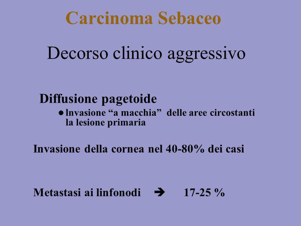 Carcinoma Sebaceo Diffusione pagetoide lnvasione a macchia delle aree circostanti la lesione primaria Decorso clinico aggressivo Invasione della corne