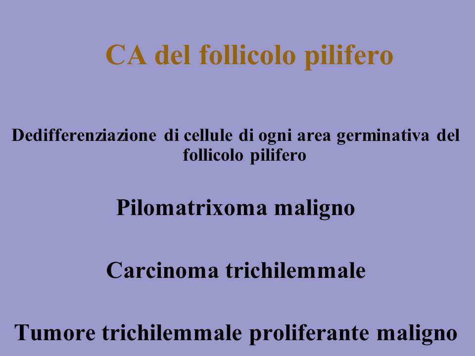 CA del follicolo pilifero Dedifferenziazione di cellule di ogni area germinativa del follicolo pilifero Pilomatrixoma maligno Carcinoma trichilemmale