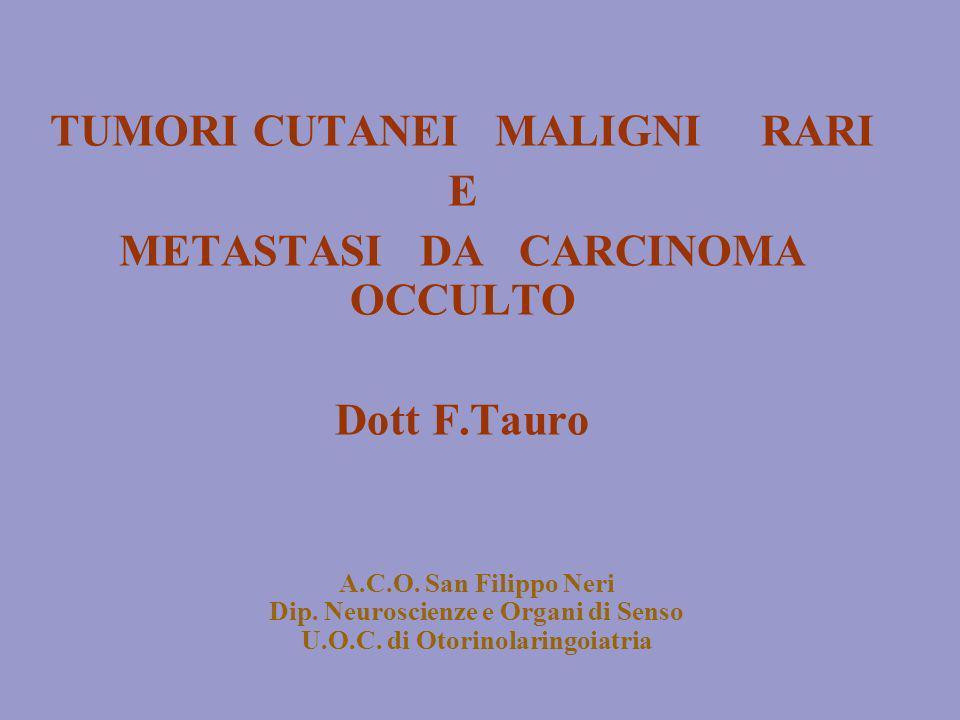 A.C.O. San Filippo Neri Dip. Neuroscienze e Organi di Senso U.O.C. di Otorinolaringoiatria TUMORI CUTANEI MALIGNI RARI E METASTASI DA CARCINOMA OCCULT