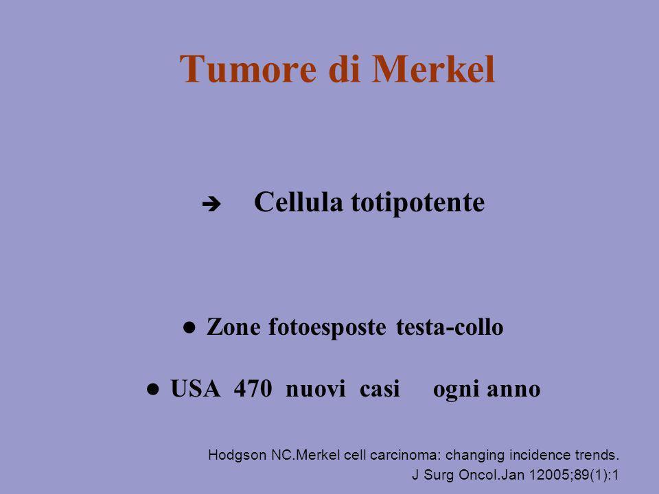 Tumore di Merkel Cellula totipotente Zone fotoesposte testa-collo USA 470 nuovi casi ogni anno Hodgson NC.Merkel cell carcinoma: changing incidence tr