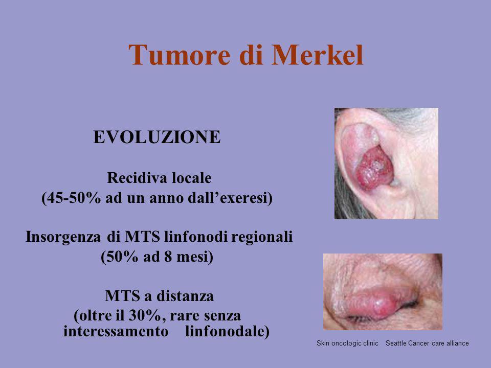Tumore di Merkel EVOLUZIONE Recidiva locale (45-50% ad un anno dallexeresi) Insorgenza di MTS linfonodi regionali (50% ad 8 mesi) MTS a distanza (oltr