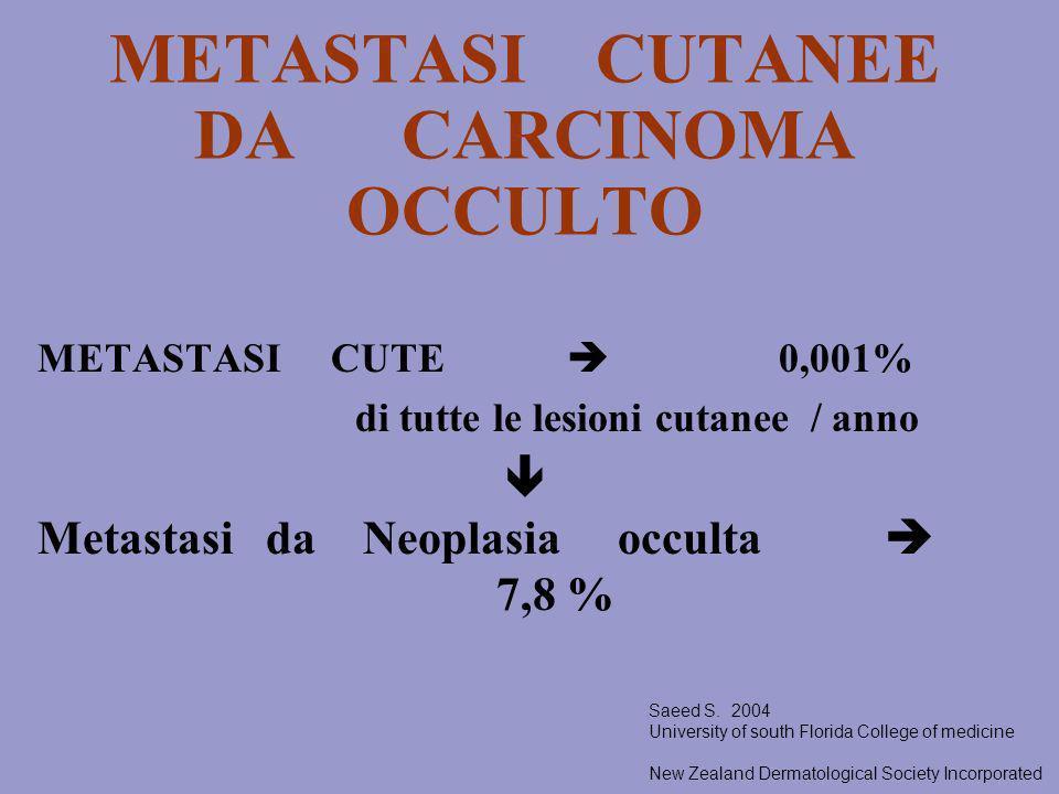 METASTASI CUTANEE DA CARCINOMA OCCULTO METASTASI CUTE 0,001% di tutte le lesioni cutanee / anno Metastasi da Neoplasia occulta 7,8 % Saeed S. 2004 Uni