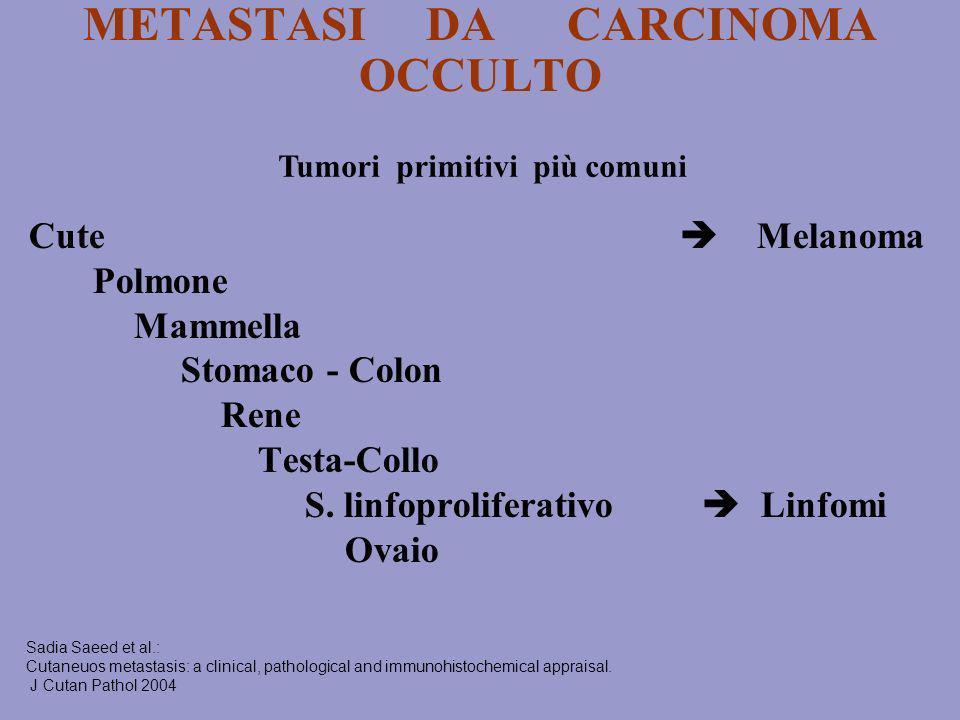 METASTASI DA CARCINOMA OCCULTO Cute Melanoma Polmone Mammella Stomaco - Colon Rene Testa-Collo S. linfoproliferativo Linfomi Ovaio Sadia Saeed et al.: