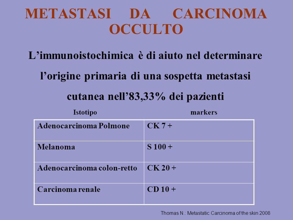METASTASI DA CARCINOMA OCCULTO Limmunoistochimica è di aiuto nel determinare lorigine primaria di una sospetta metastasi cutanea nell83,33% dei pazien
