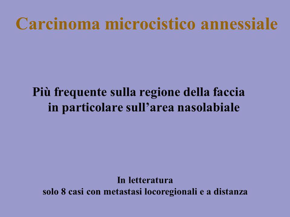 Carcinoma microcistico annessiale Più frequente sulla regione della faccia in particolare sullarea nasolabiale In letteratura solo 8 casi con metastas